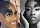 Reina afro supera el rechazo sufrido por tener un lunar en su rostro